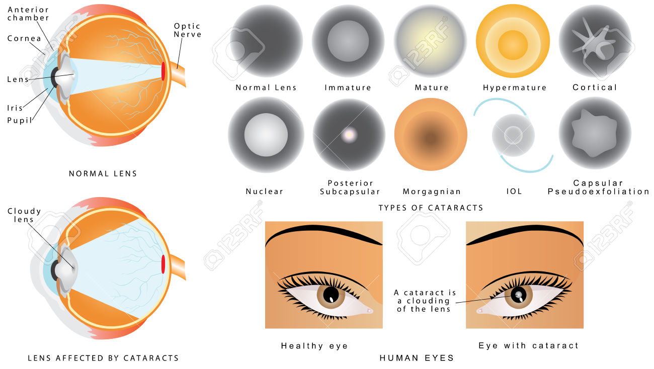 226 Cataract Stock Illustrations, Cliparts And Royalty Free.