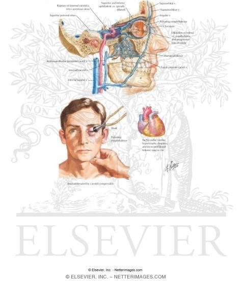 Cavernous Arteriovenous Fistula.