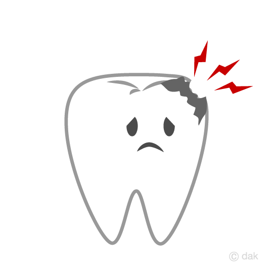 Cavity Tooth Clipart.