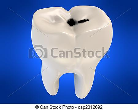 Cavities Clipart and Stock Illustrations. 5,895 Cavities vector.