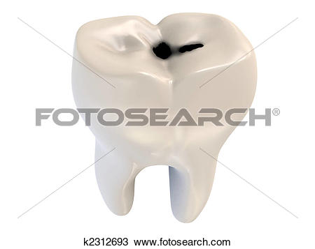 Drawing of cavity tooth decay k2312693.