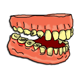 Tooth Cavities In Teeth Clipart Free Clip Art Image Image.