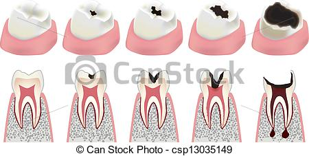 EPS Vector of Cavity.