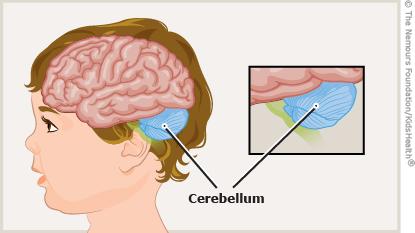 A to Z: Cerebellar Ataxia.