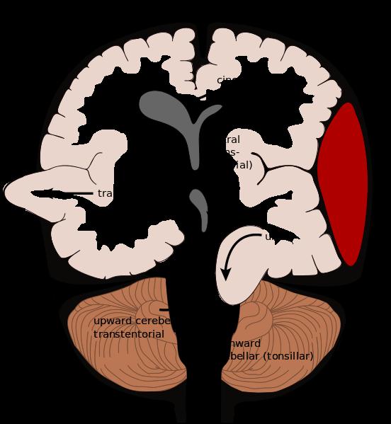 Neurology.