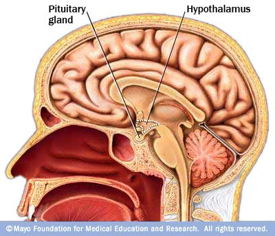 Sheehan syndrome = postpartum pituitary apoplexy due to enlarged.
