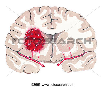 Clipart of Brain with Hemorrhage Unlabeled 9865f.