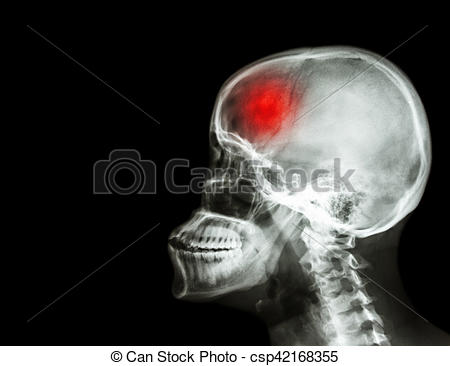 Stock Images of Stroke . film x.