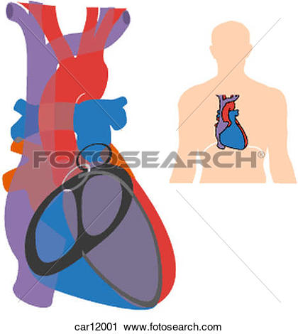 Clipart of Anteroposterior radiogram showing great vessels.