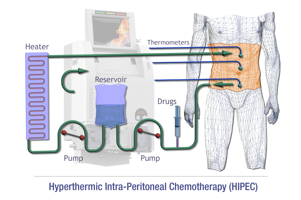 Hyperthermic intraperitoneal chemotherapy.