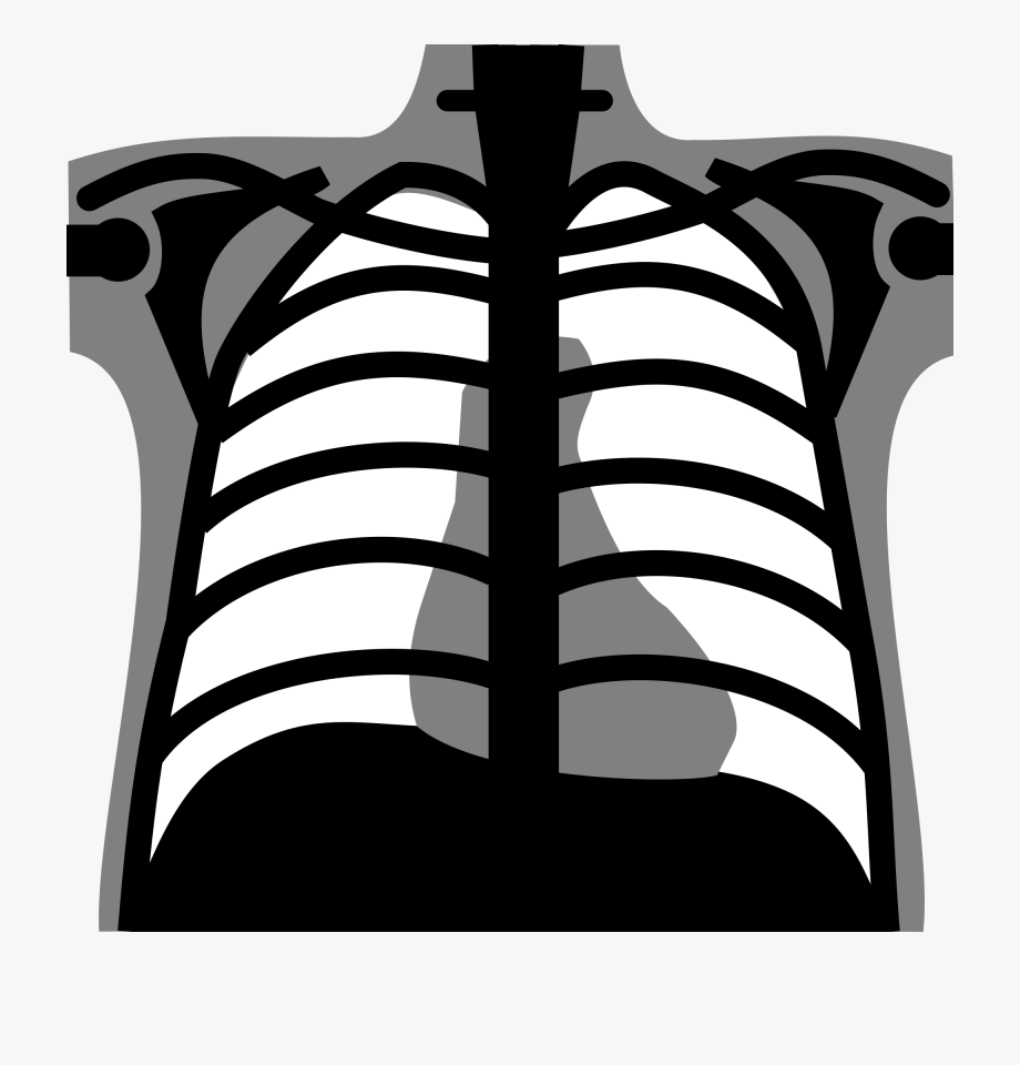 Png Royalty Free Library X Rays Clipart.