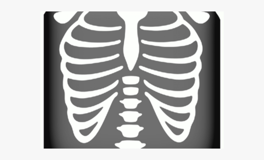 Chest X Ray Png, Cliparts & Cartoons.