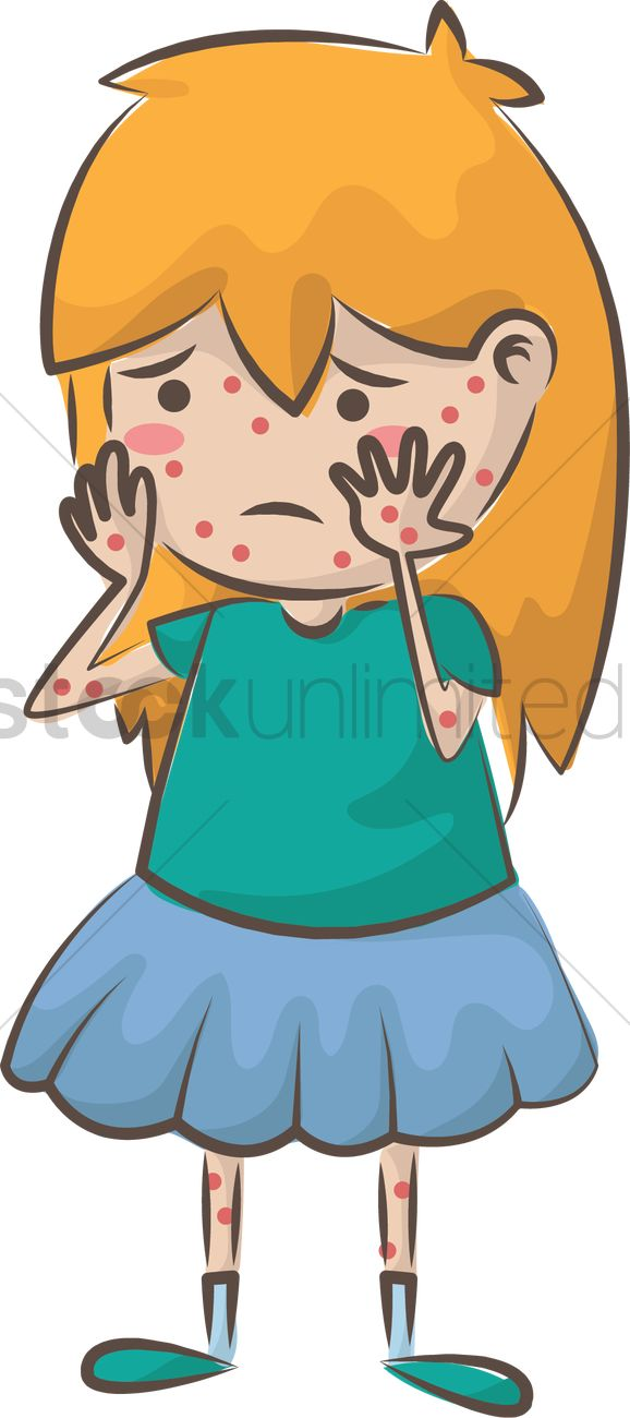 Girl with chicken pox Vector Image.