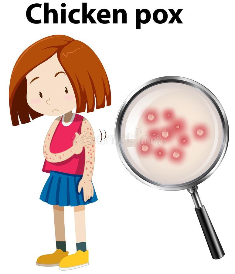 Chicken Pox Stock Illustrations.