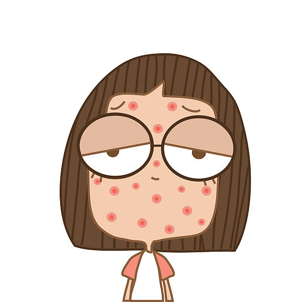 Top 60 Chickenpox Clip Art, Vector Graphics and Illustrations.