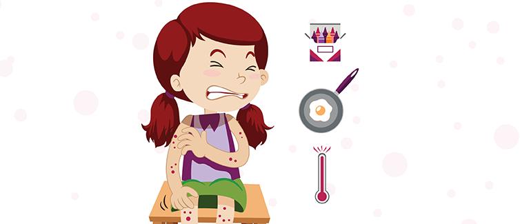 How to Treat Chickenpox.