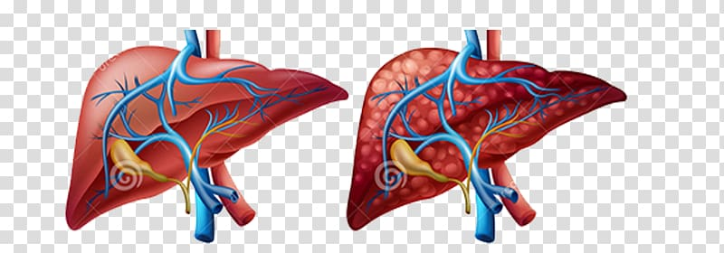 Liver Human body Diagram Cirrhosis Organ, others transparent.