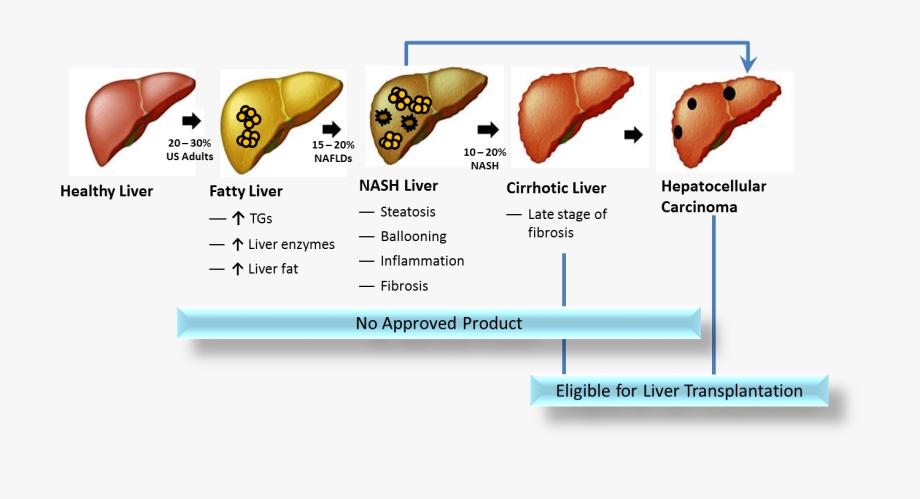 Liver Clipart Cirrhosis.