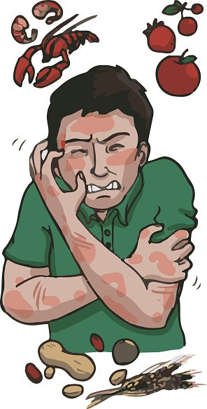 Allergies Clipart Image.