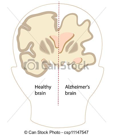 Similiar Alzheimer's Disease Clip Art Keywords.