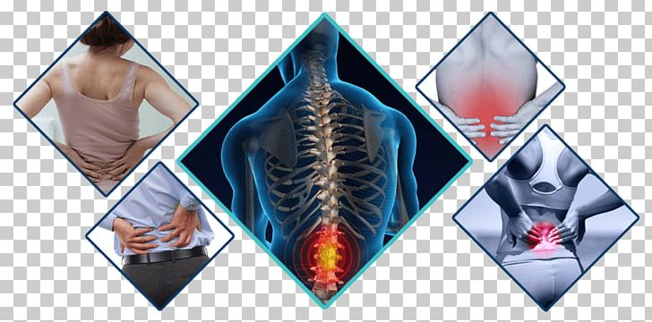 Back Pain Neck Pain Chiropractic Human Back PNG, Clipart.