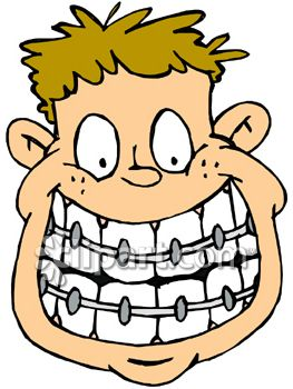People playing soccer with braces clipart.