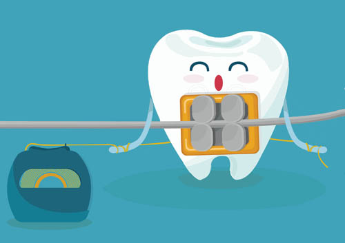 How to Floss with Braces.