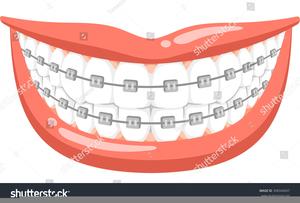 Clipart Braces On Teeth.