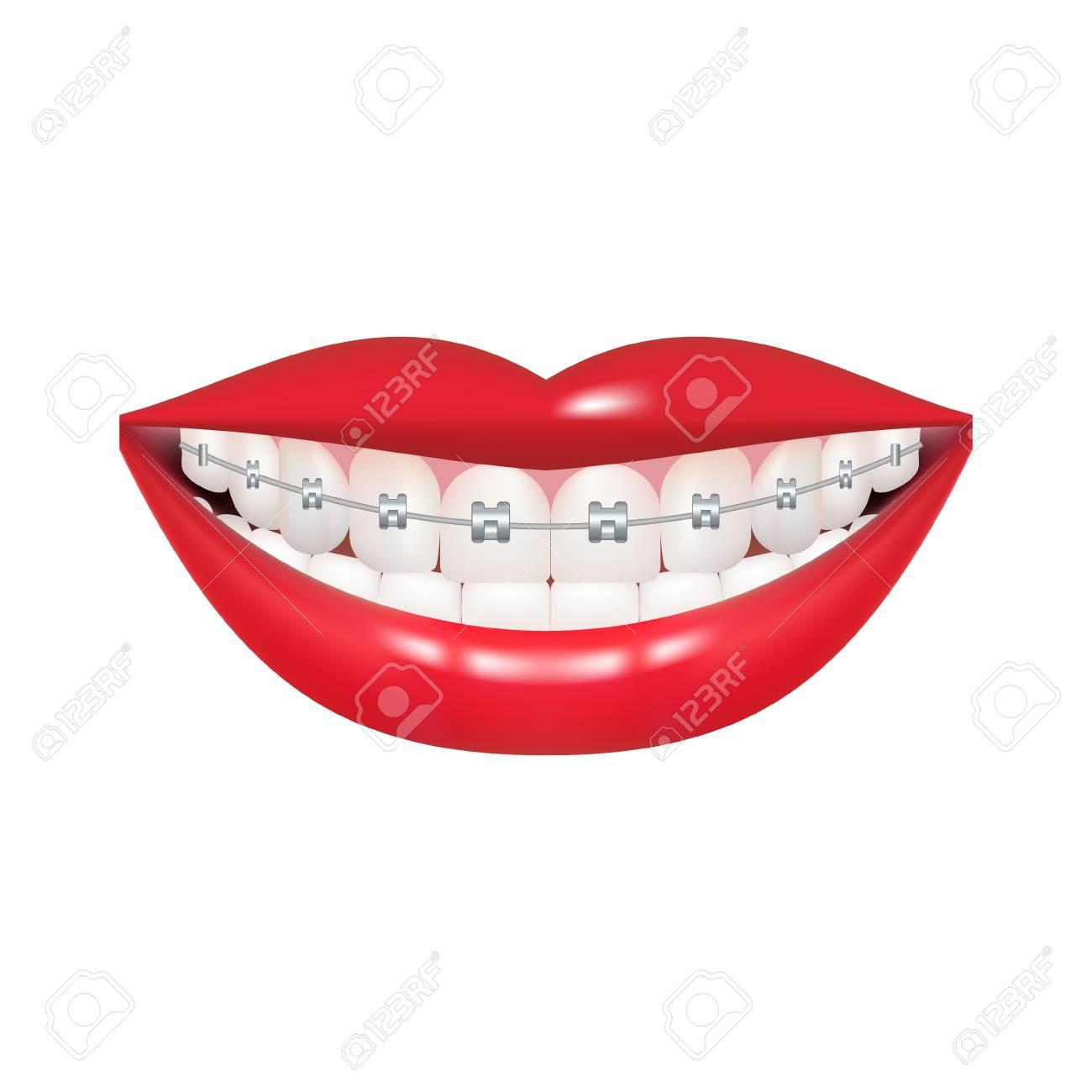 Dentist, orthodontist. Vector illustration. Braces on teeth.