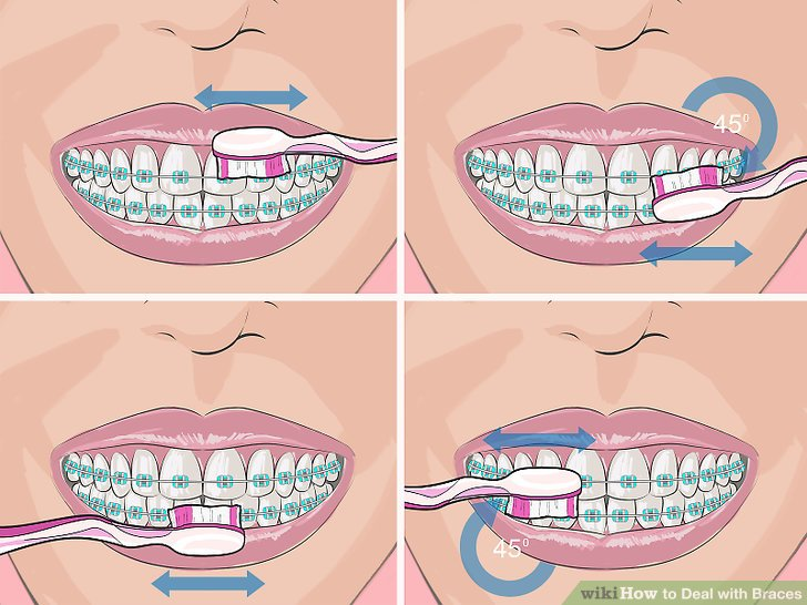 3 Ways to Deal with Braces.
