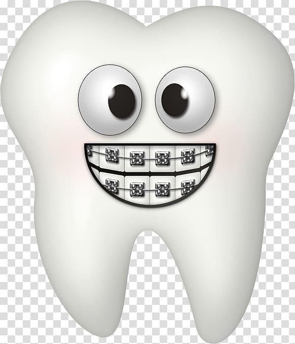 Dental braces Dentistry Tooth , Orthodontist transparent background.