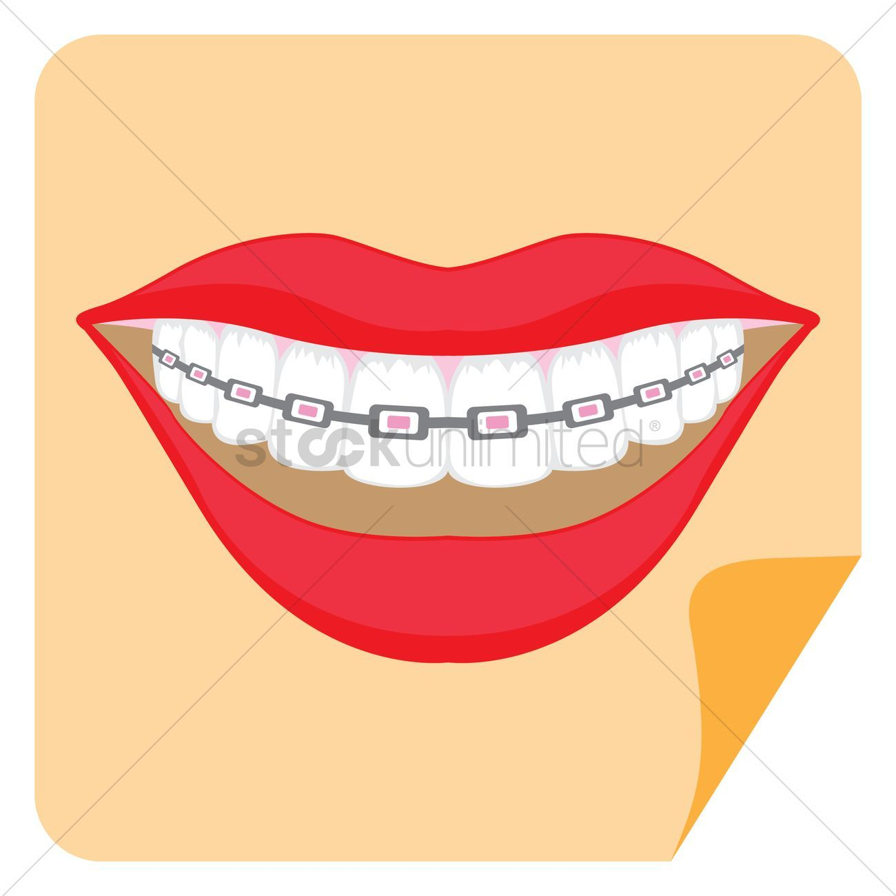 Teeth with braces vectors, stock clipart , #Affiliate.