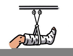 Broken Foot Clipart.