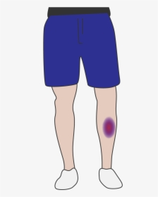 Bruise PNG Images, Free Transparent Bruise Download.