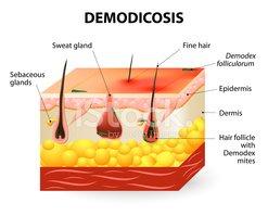 Demodex Mite stock vectors.