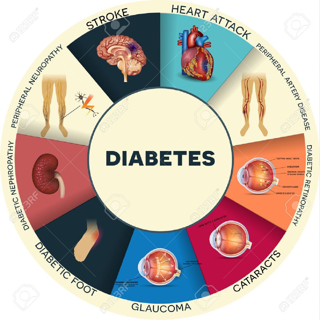 7,875 Diabetes Stock Vector Illustration And Royalty Free Diabetes.