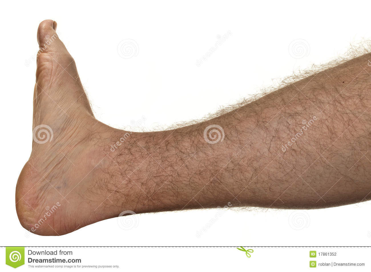 Hairy Legs Woman Stock Photos, Images, & Pictures.