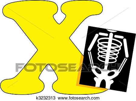 Letter X with an X Ray Clipart.