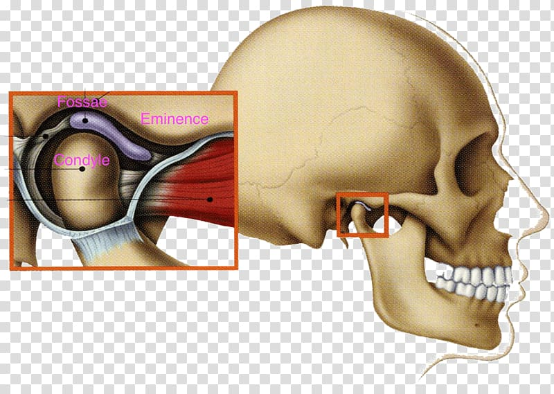 Temporomandibular joint dysfunction Mandible Jaw, others.