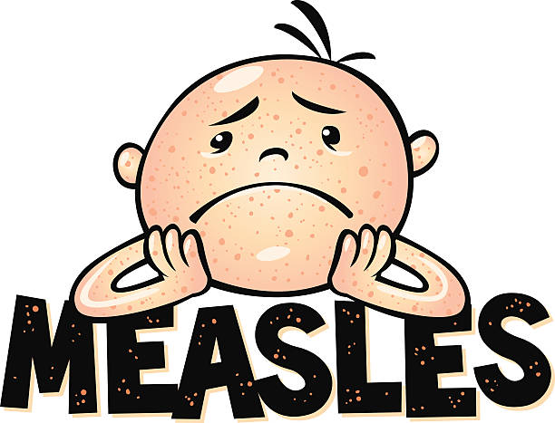 Best Measles Illustrations, Royalty.