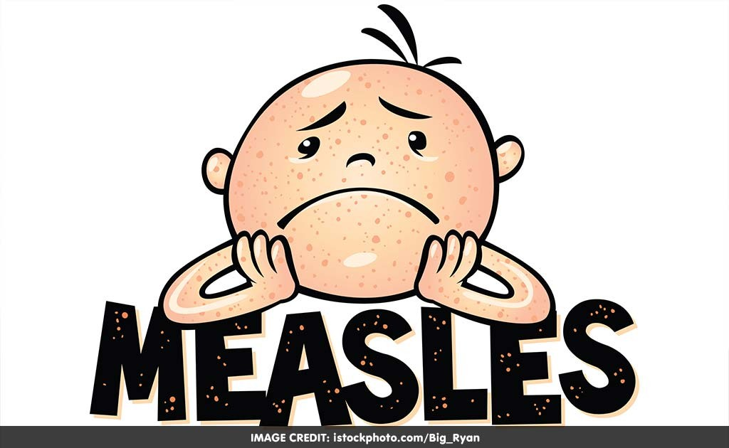 Measles Clipart.