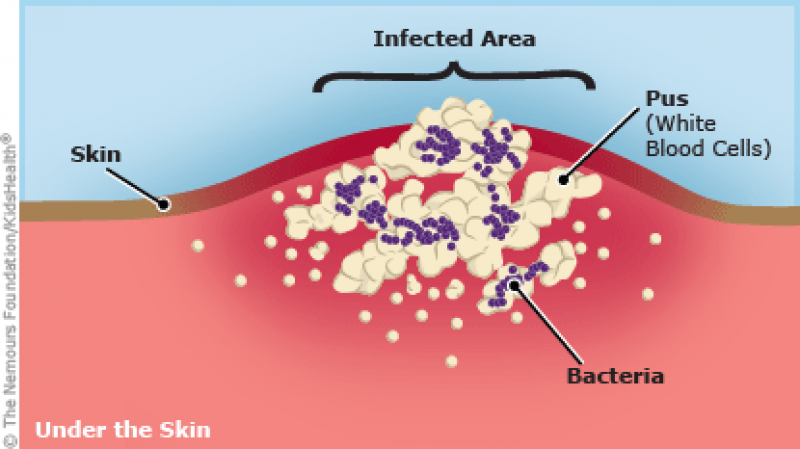 Staph Infection Clipart.