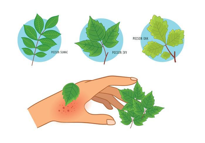 Poison Ivy Oak Sumac Rash.