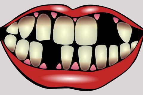 Porqué se me caen los dientes?.