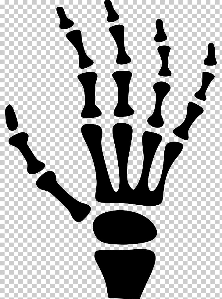 Carpal bones Human skeleton Hand, hand PNG clipart.