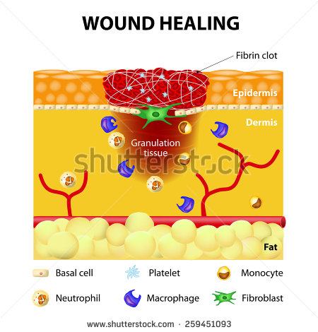 Clipart wound care.