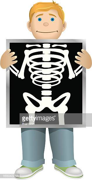 30 Top Xray Stock Illustrations, Clip art, Cartoons and Icons.