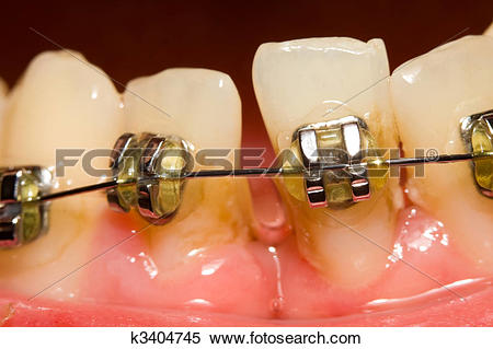 Stock Image of Closing of gap with dental braces k3404745.