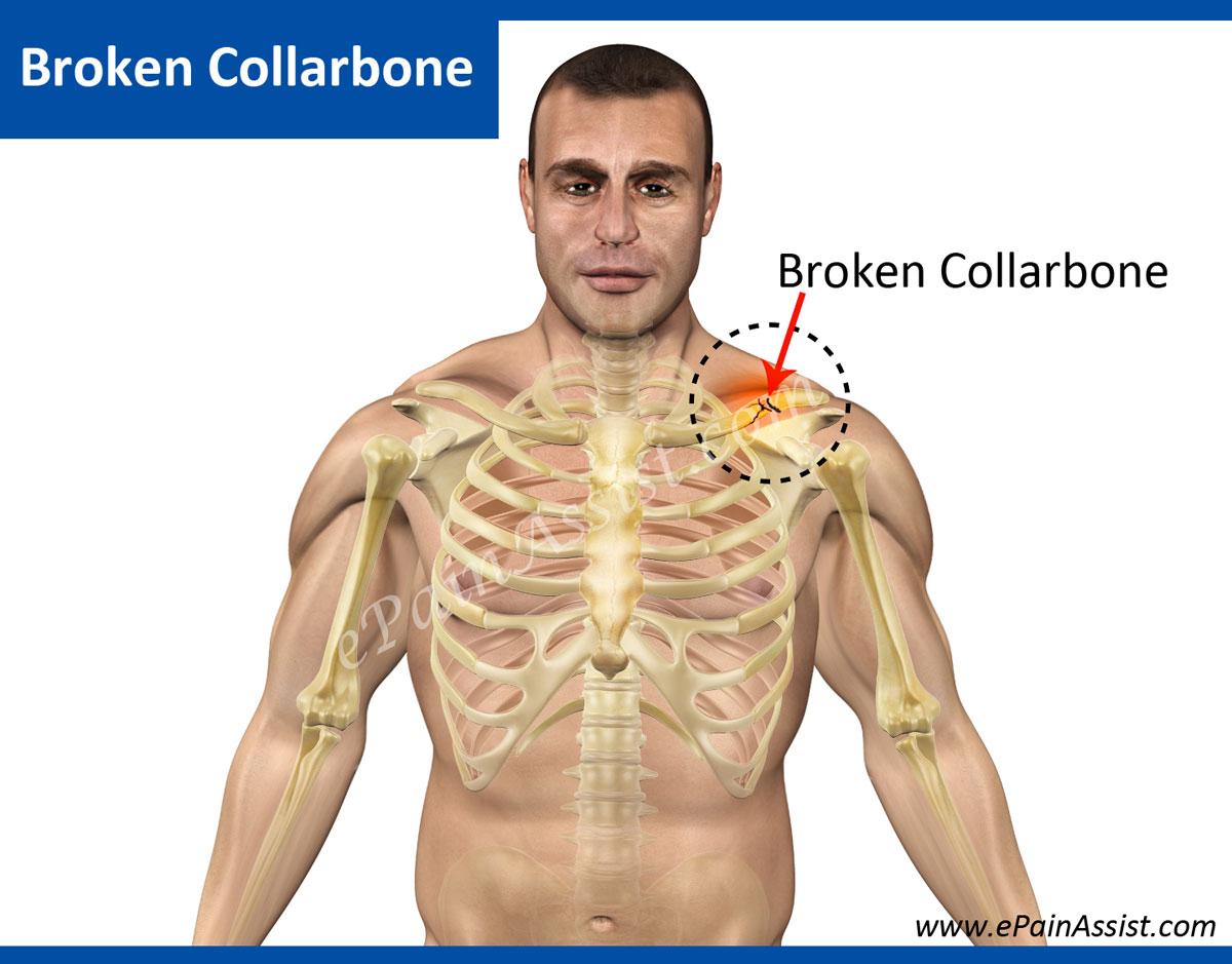 collar bone #9