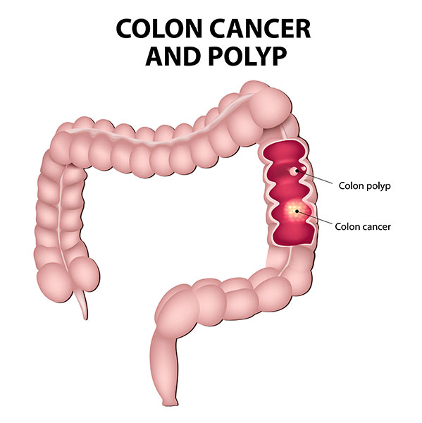 What is Colorectal Cancer?.
